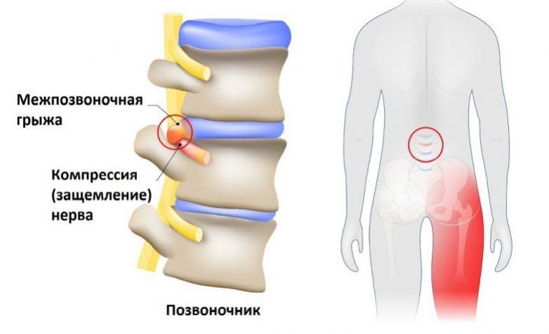 """Если у собаки отказали ноги - симптомы, лечение паралича конечностей у собак в москве. ветеринарная клиника """"зоостатус"""""""