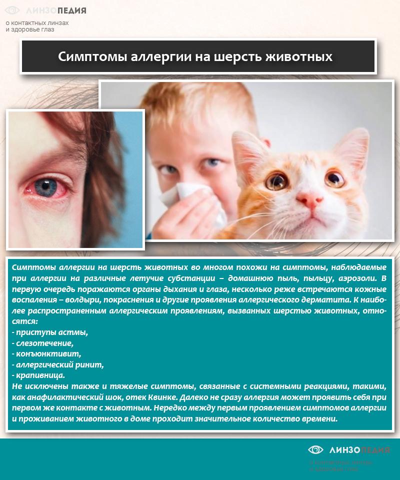 Аллергия: что это, почему возникает и можно ли избавиться навсегда | рбк тренды