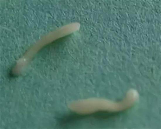 Глисты – основные причины и способы лечения.