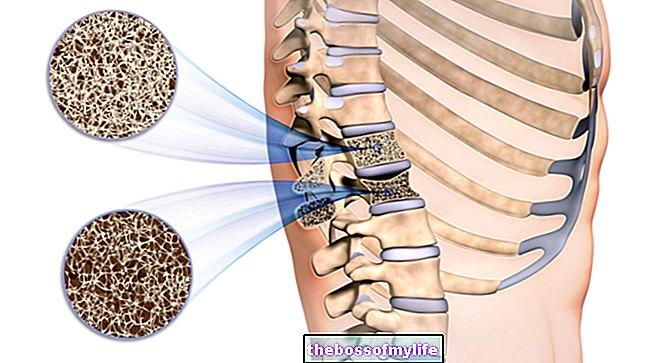 Рекомендации по питанию для людей с синдромом короткого кишечника | memorial sloan kettering cancer center