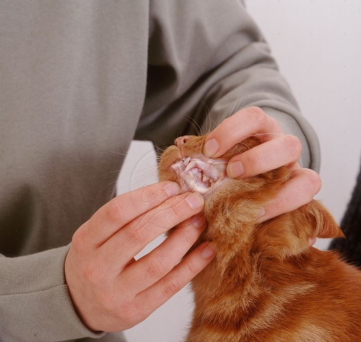 Парапроктит: причины, виды, симптомы. методы лечения парапроктита