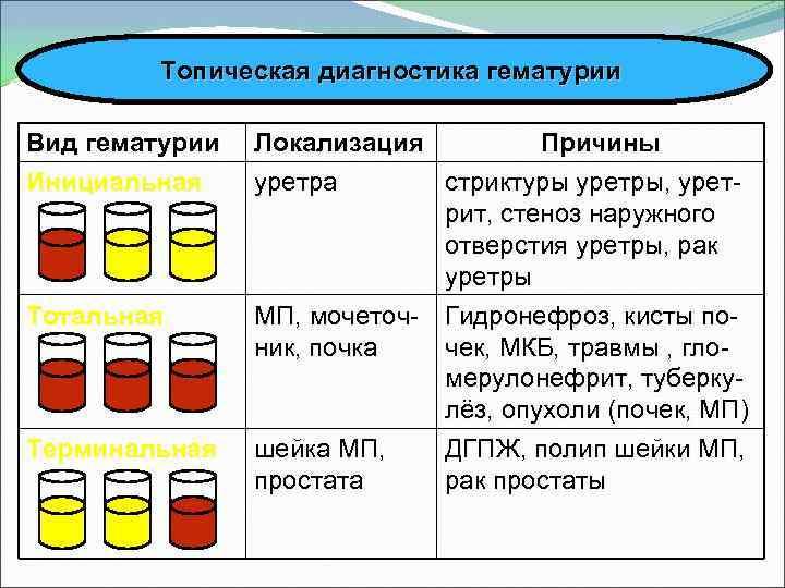 Кровь в моче (гематурия). причины гематурии